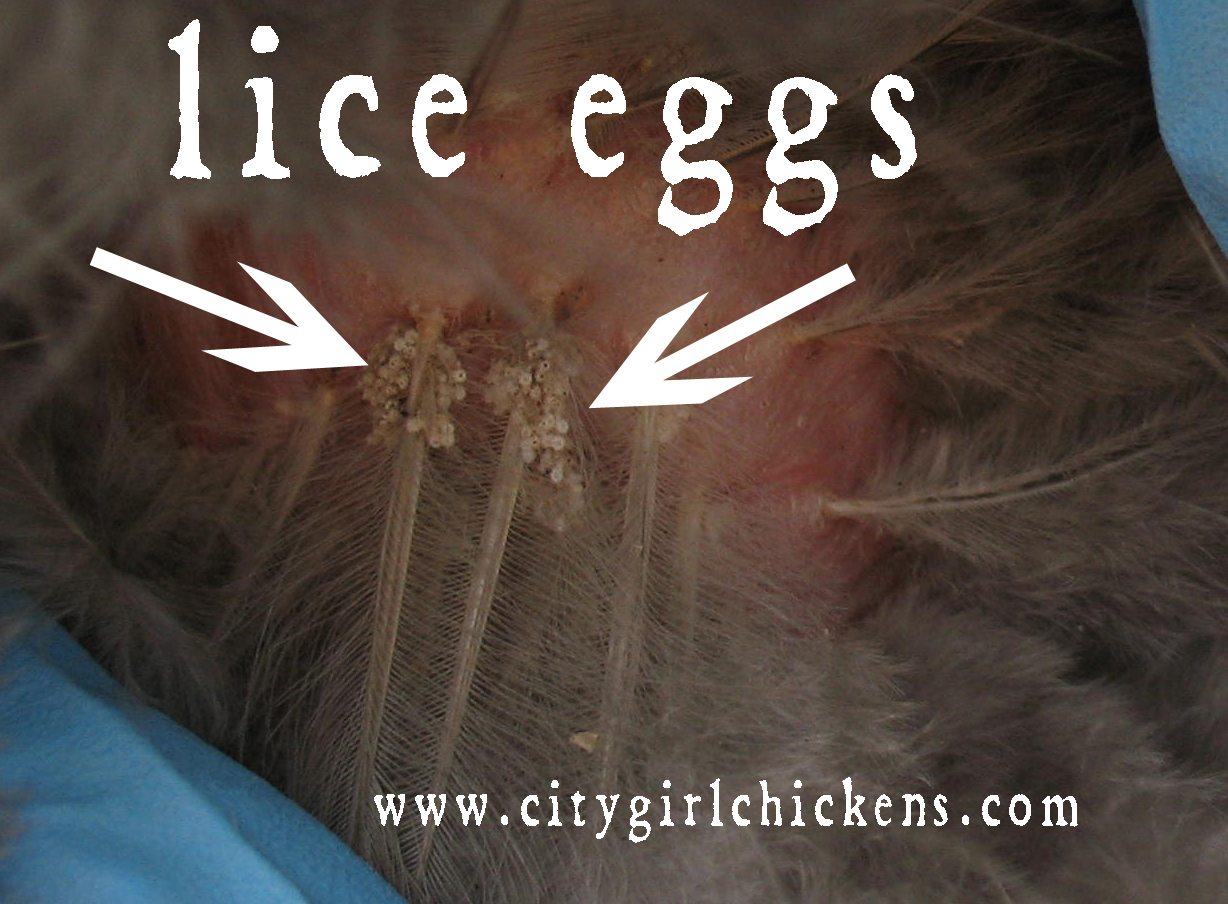 What Do Lice Eggs Look Like